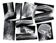 Broken bones x-rays